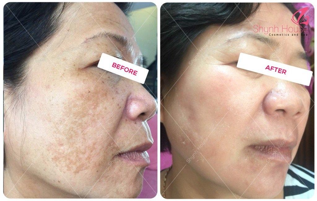 điều trị da mặt